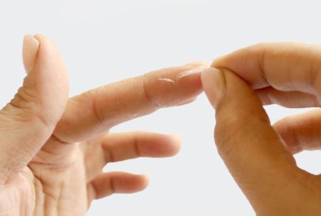 При попадании на пальцы